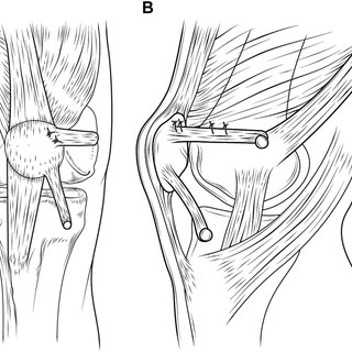 Final aspect of reconstruction of medial patellofemoral