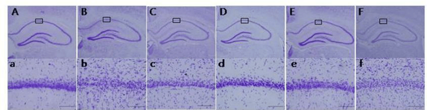 Photographs of cresyl violet-stained hippocampal regions treated with... | Download Scientific Diagram