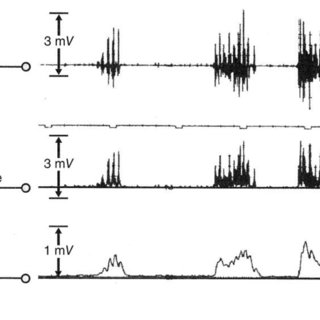 The steps involved in linear envelope detection of the EMG