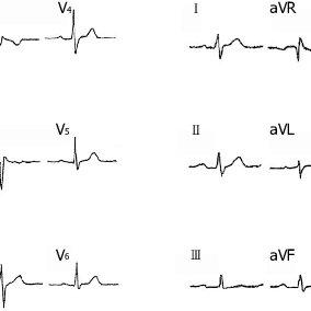 (PDF) Pacemaker implantation in a patient with brugada and