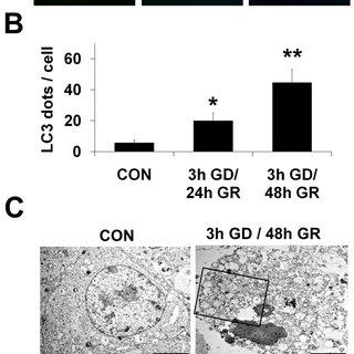 (A) Representative images of fluorescent LC3 puncta. Cells