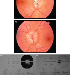 fundus photograph showing a champagne cork like appearance in chronic papilloedema in the right [ 850 x 1244 Pixel ]