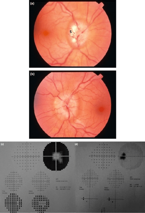 small resolution of fundus photograph showing a champagne cork like appearance in chronic papilloedema in the right