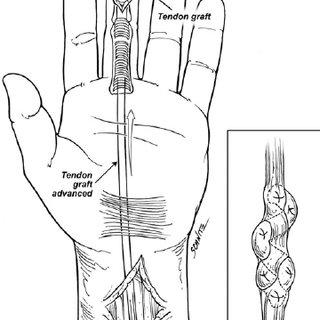 (PDF) Secondary Flexor Tendon Reconstruction, A Review