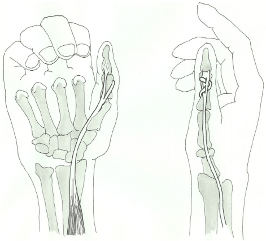 Distal tenodesis of a long thumb flexor tendon for a