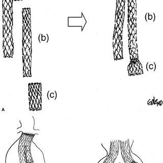 (PDF) Bell-bottom aortoiliac endografts: An alternative