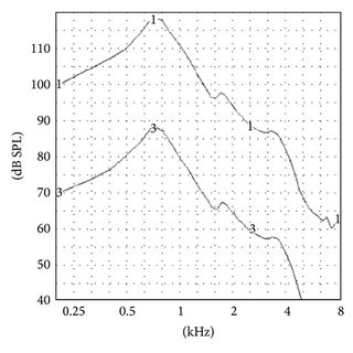Electroacoustic measurements conducted on OTC hearing aids