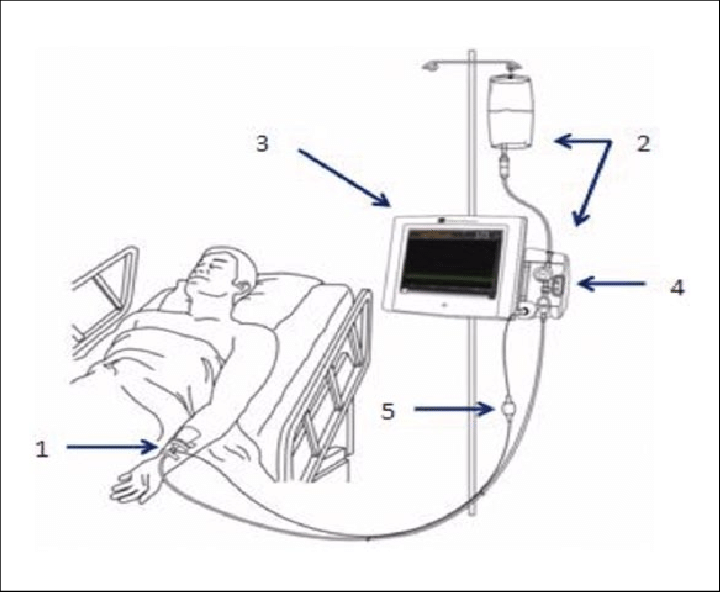 Components of the IVBG system: (1) IVBG sensor and patient