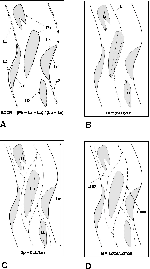 (A) River Channel Complexity Ratio (RCCR), as calculated