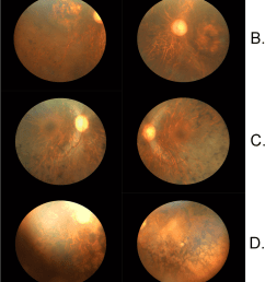 fundus photographs of affected individuals with inherited retinal download scientific diagram [ 850 x 1645 Pixel ]