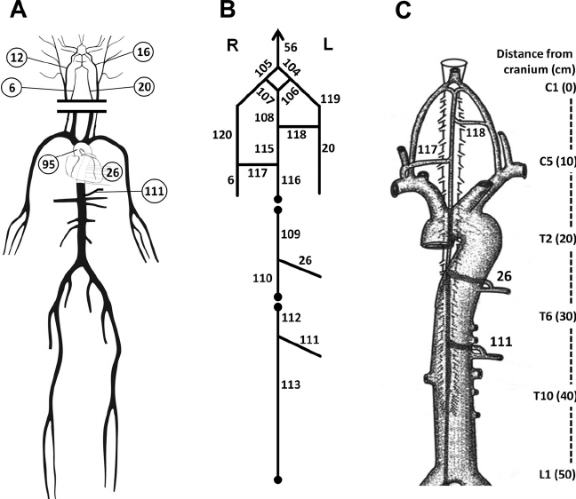 A : schematic representation of the arterial tree based on