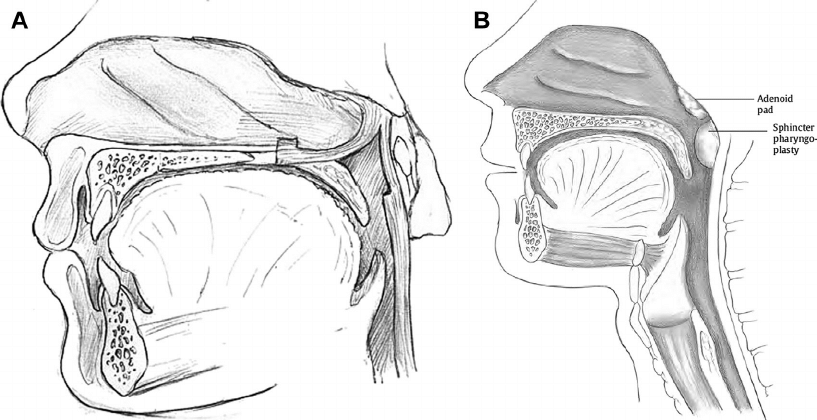 ( A ) Superiorly based pharyngeal flap. ( B ) Sphincter