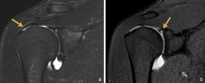 a) Coronal T2 weighted MR image with fat saturation