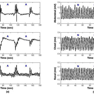 (PDF) Sleep apnea classification based on respiration