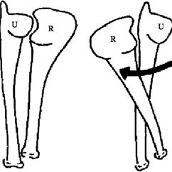 Forearm Bones Diagram Ford Focus 2005 Radio Wiring Druj Comprises The Two Radius R And Ulna U Wrist