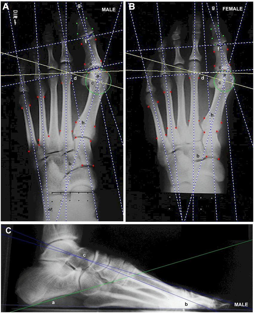 medium resolution of dorso plantar x ray of the right foot of a male patient a
