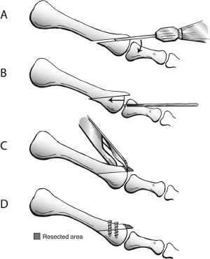 Graphic demonstration of Weil osteotomy A) sagittal saw to perform the | Download Scientific