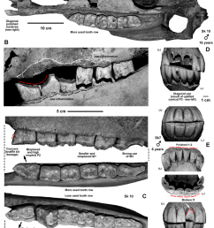 dental pathologies 1 a sk 10 skull with strongest dental pathologies at all teeth [ 850 x 1302 Pixel ]