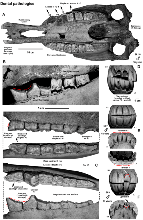 small resolution of dental pathologies 1 a sk 10 skull with strongest dental pathologies at all teeth