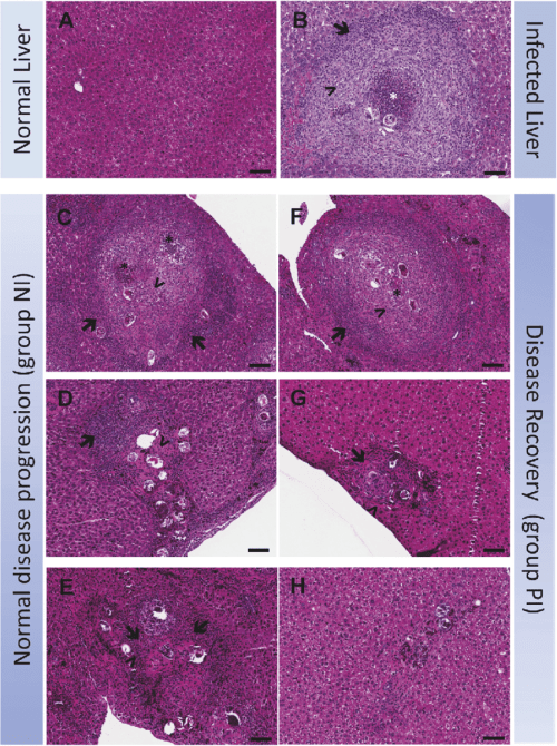 small resolution of histopathological features of schistosoma japonicum egg induced hepatic granuloma in c57bl 6 mice before