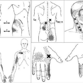 (PDF) Myofascial Trigger Points: An Evidence-Informed Review