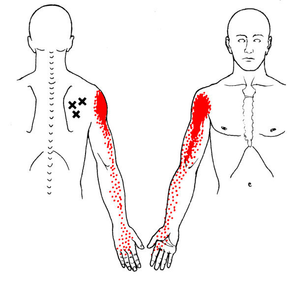 Referred pain patterns (red) from the infraspinatus muscle