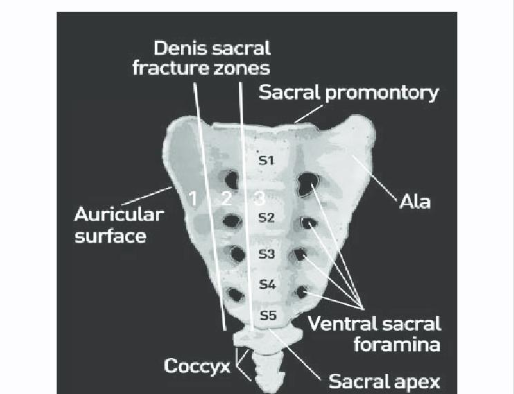 Zone 1 Fracture Sacrum