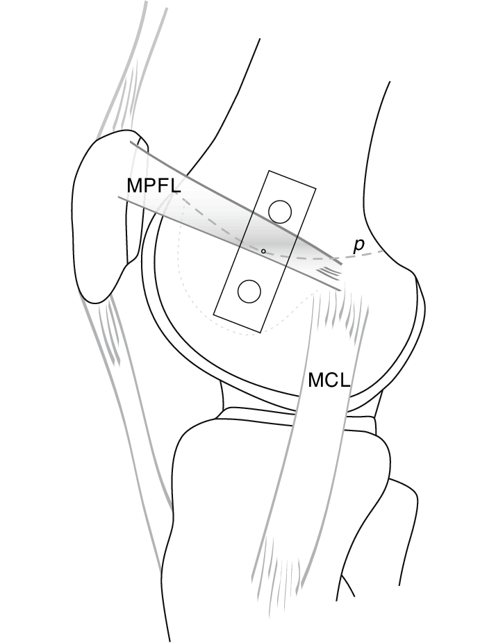 Line drawing illustrates medial view onto the knee with