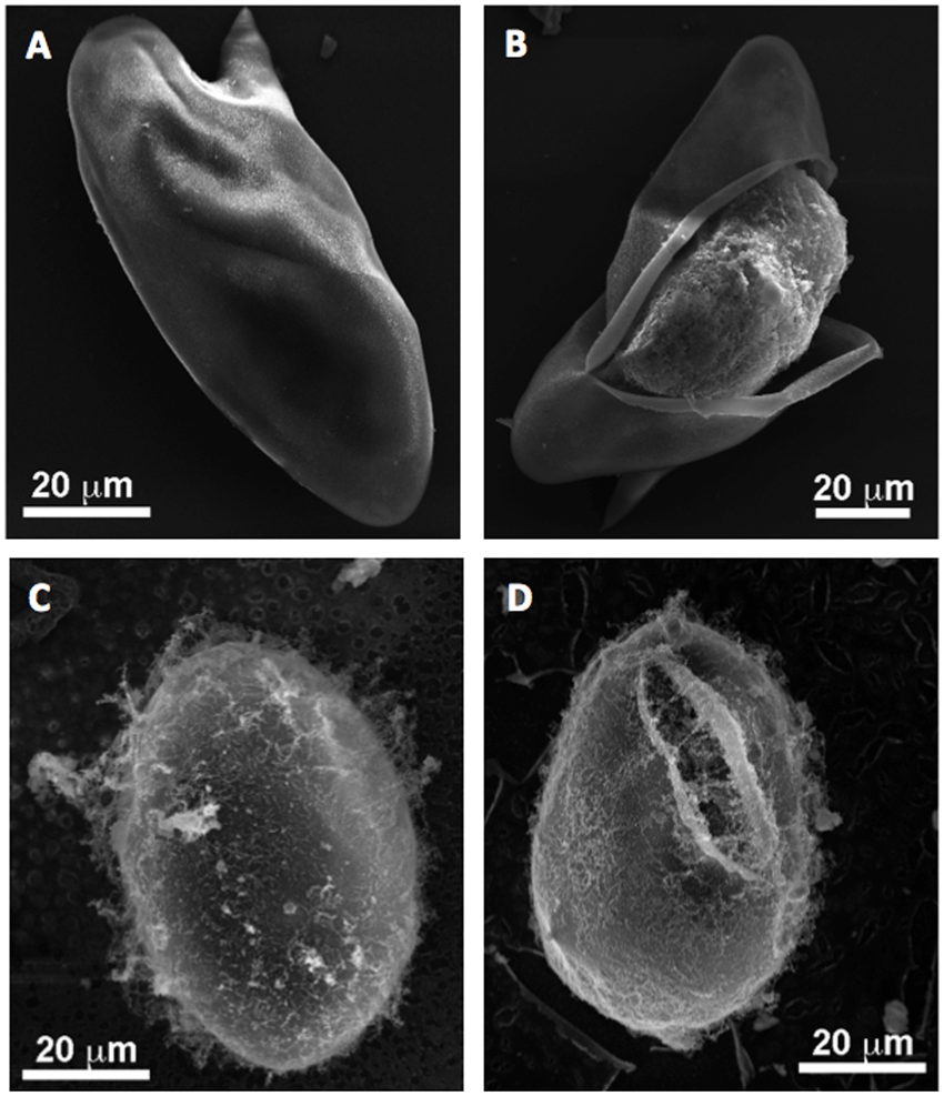 hight resolution of morphology of schistosoma mansoni and schistosoma japonicum eggs panel a shows an intact egg of