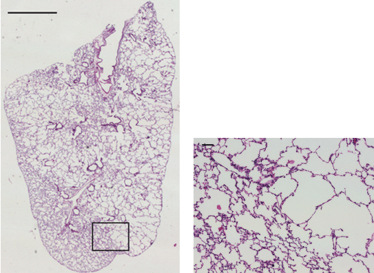 Sample Histology Images Corresponding To A Lung Lobe Slice