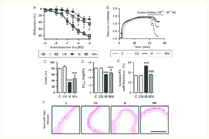 Treatment with rhNRG-1 attenuates endothelial dysfunction ...