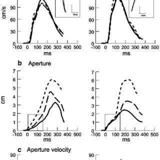 (PDF) Manual asymmetries in grasp pre-shaping and