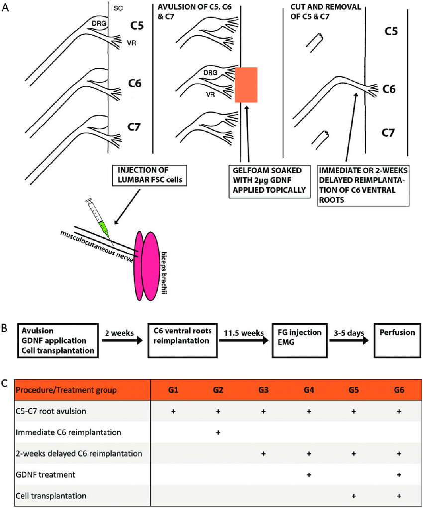 medium resolution of  a dorsal roots of c5 c6 and c7 were cut and ventral download scientific diagram