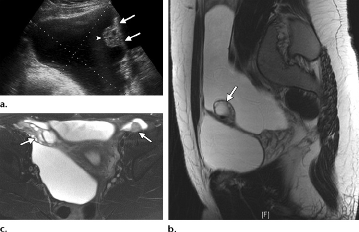 Peritoneal inclusion cyst in an 18-year-old woman with ...