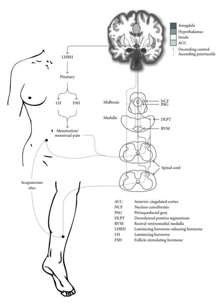medium resolution of hypothesized mechanism of acupuncture on dysmenorrhea and related symptoms