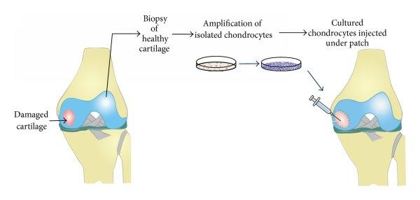 Schematic representation of autologous chondrocyte ...