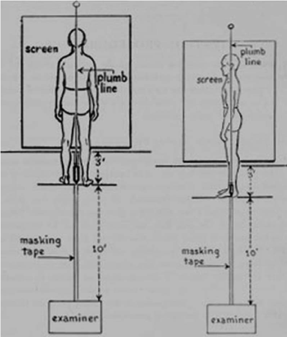 Posture assessment viewing set up. (Reprinted by