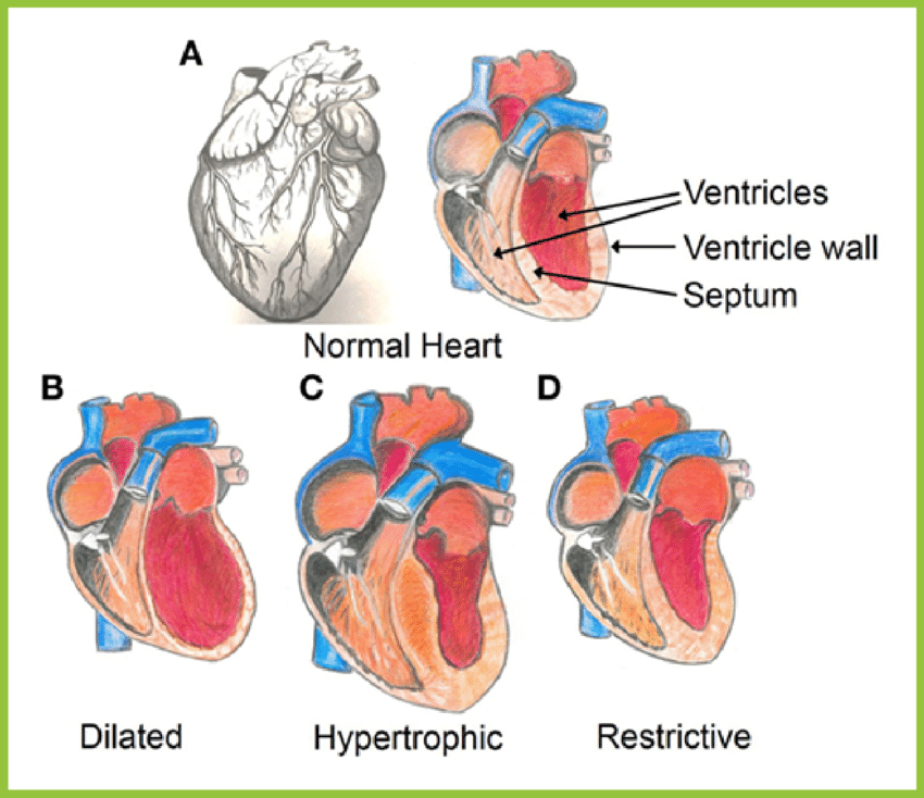 heart diagram inside wiring jeep grand cherokee structure of the a anatomy normal healthy from outside left and right showing ventricles which make up bottom