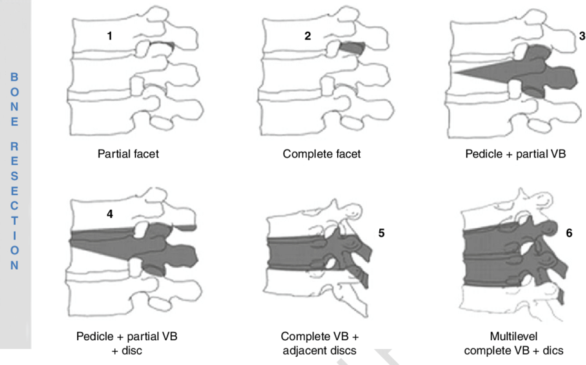 13 Spinal osteotomies according to Schwab classification
