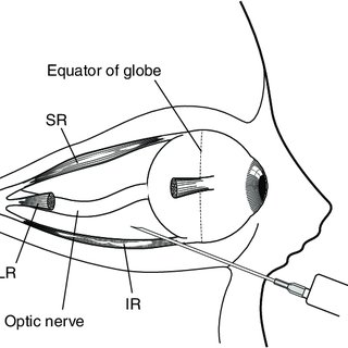 Cross-section through the eye and optic nerve. Arrows