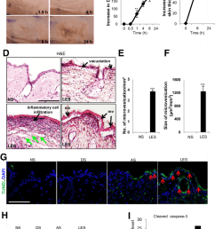 topical administration of lewisite induces acute inflammation and skin damage in ptch1 skh 1 mice the skin samples analyzed here were from the  [ 850 x 1311 Pixel ]