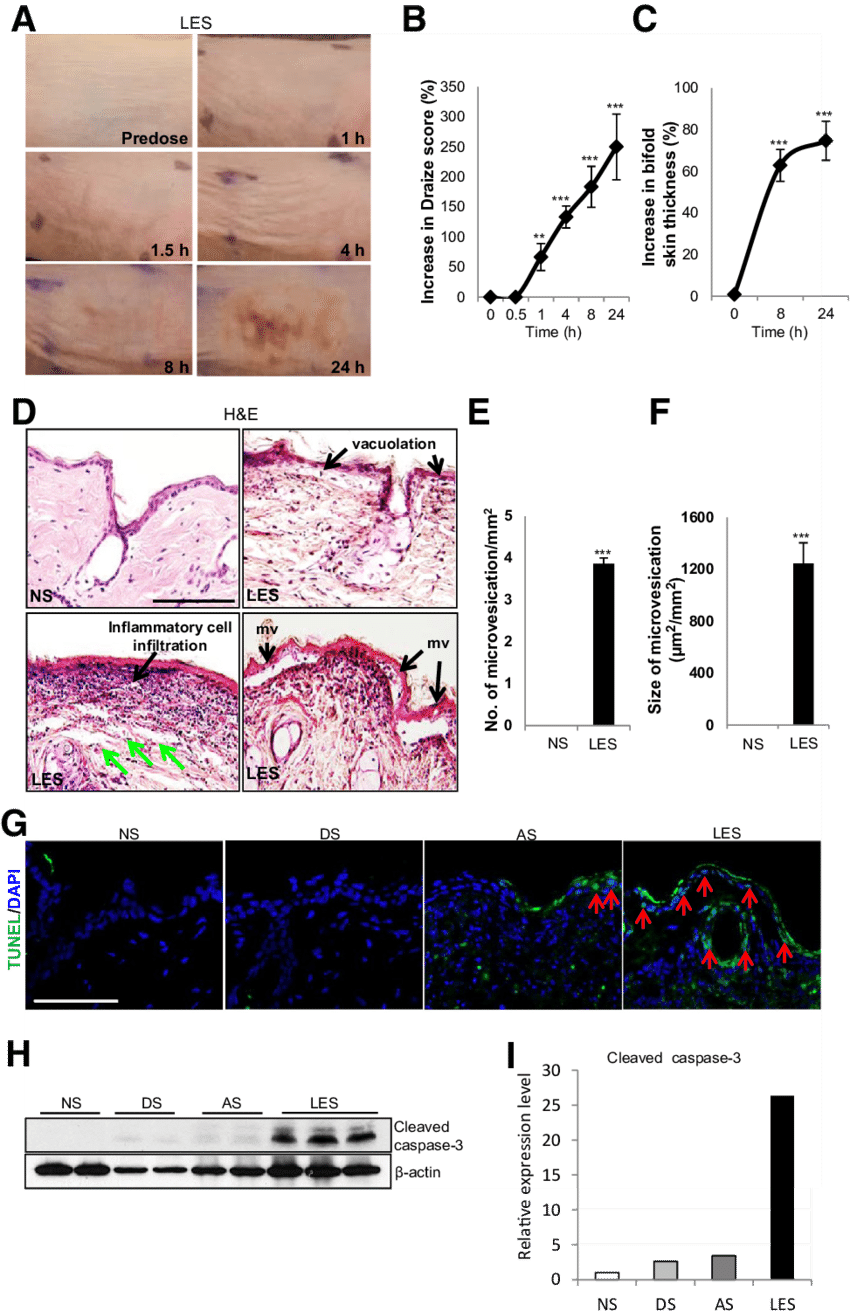 medium resolution of topical administration of lewisite induces acute inflammation and skin damage in ptch1 skh 1 mice the skin samples analyzed here were from the
