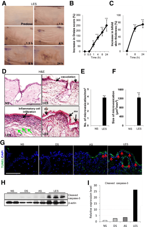 small resolution of topical administration of lewisite induces acute inflammation and skin damage in ptch1 skh 1 mice the skin samples analyzed here were from the