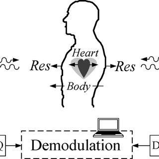 (PDF) Random Body Movement Cancellation in Doppler Radar