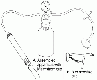 A Malmstrom's vacuum extractor with its essential