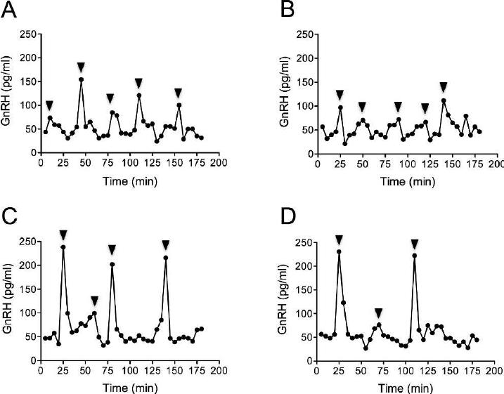 Representative line graphs depicting pulsatile GnRH