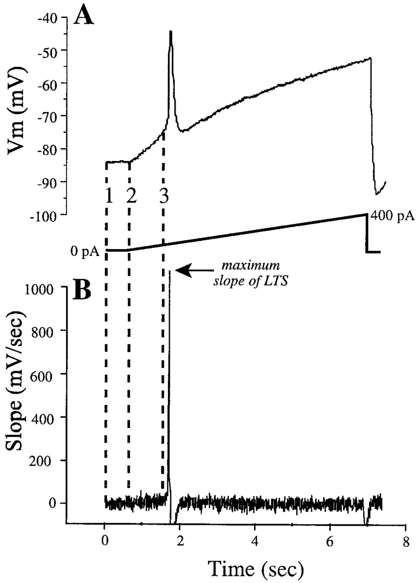 Determination of LTS threshold, LTS amplitude, and dV/dt