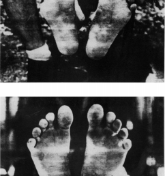 feet of top 20 year old hadzabe female and bottom  [ 737 x 1085 Pixel ]