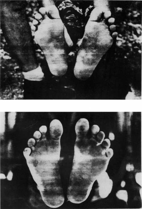 small resolution of feet of top 20 year old hadzabe female and bottom