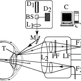 Schematic view of the laser Doppler slit lamp. The laser